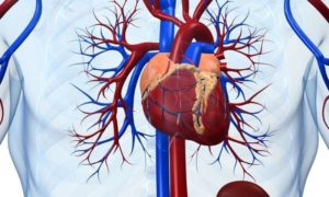 Study Outlines Doubt On Bypass And Angioplasty For Several Heart Patients